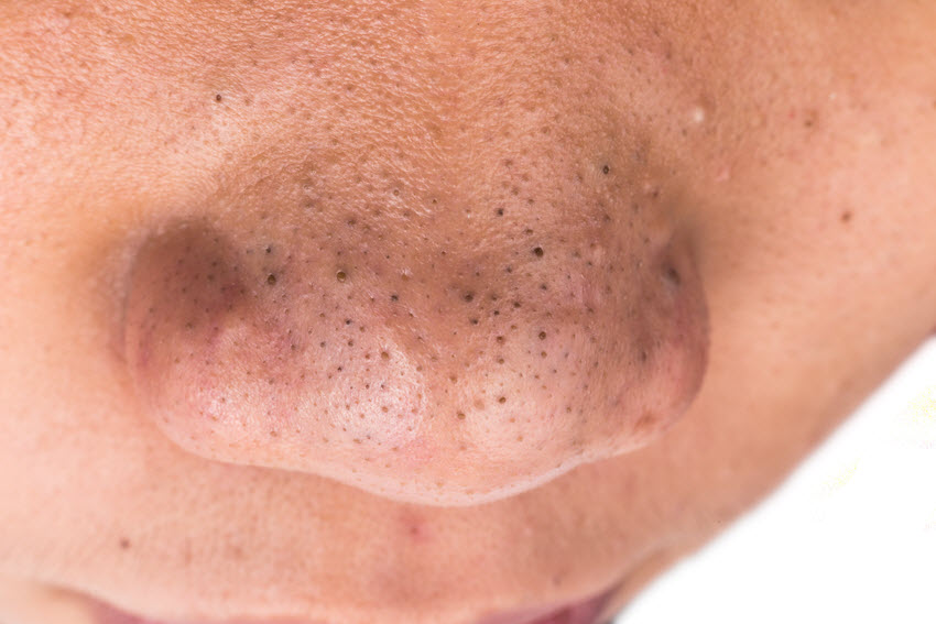 Blackheads on Man's Nose.