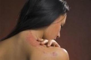 Treatment Options for burns