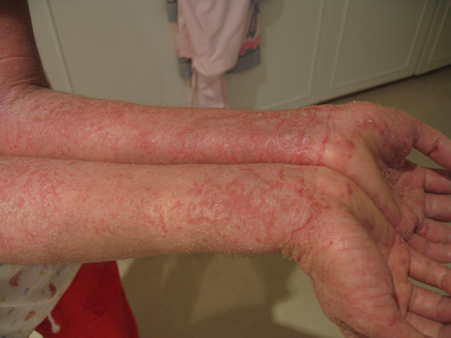 eczema 1 Latest Info On Cure For Hives Rash