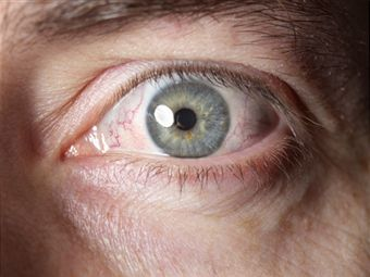 Eye Infection Remedies