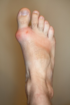 Gout from Uric Acid