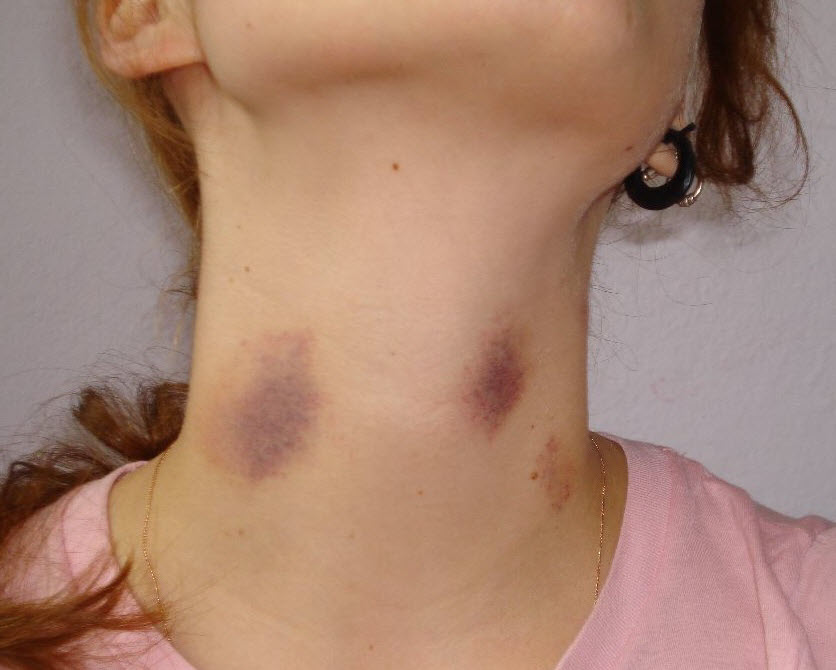 Pictures of Hickeys on a Girl's Neck, by Janek B.