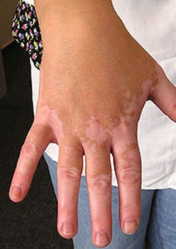 Symptoms of Leucoderma