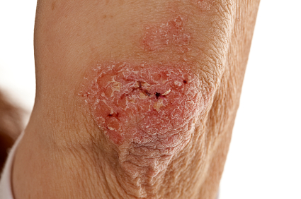 Effects of Psoriasis