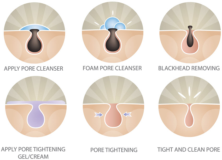Blackhead extraction process.