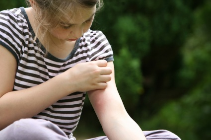Itching from Scabies