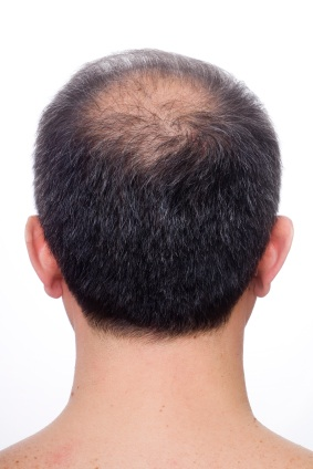 Thinning Hair Prevention