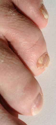 Toe Nail Fungus Removal: Toenail Herbal Remedies for Nail Fungus ...