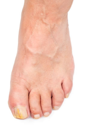 Toe Nail Fungus Natural Remedies