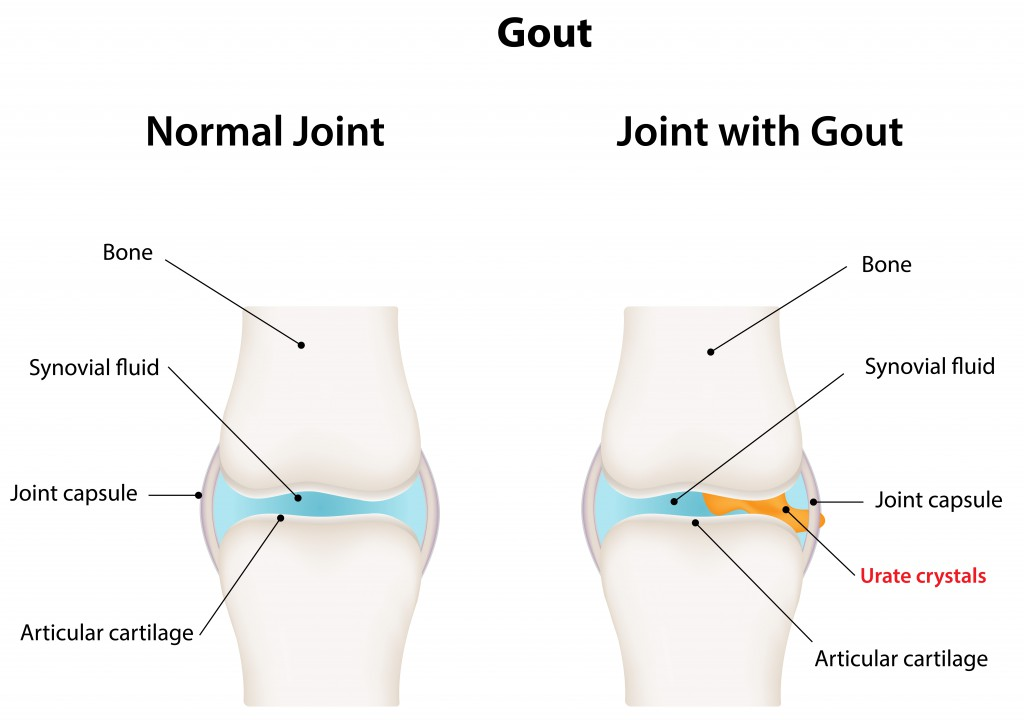 Gout on causes of kidney pain