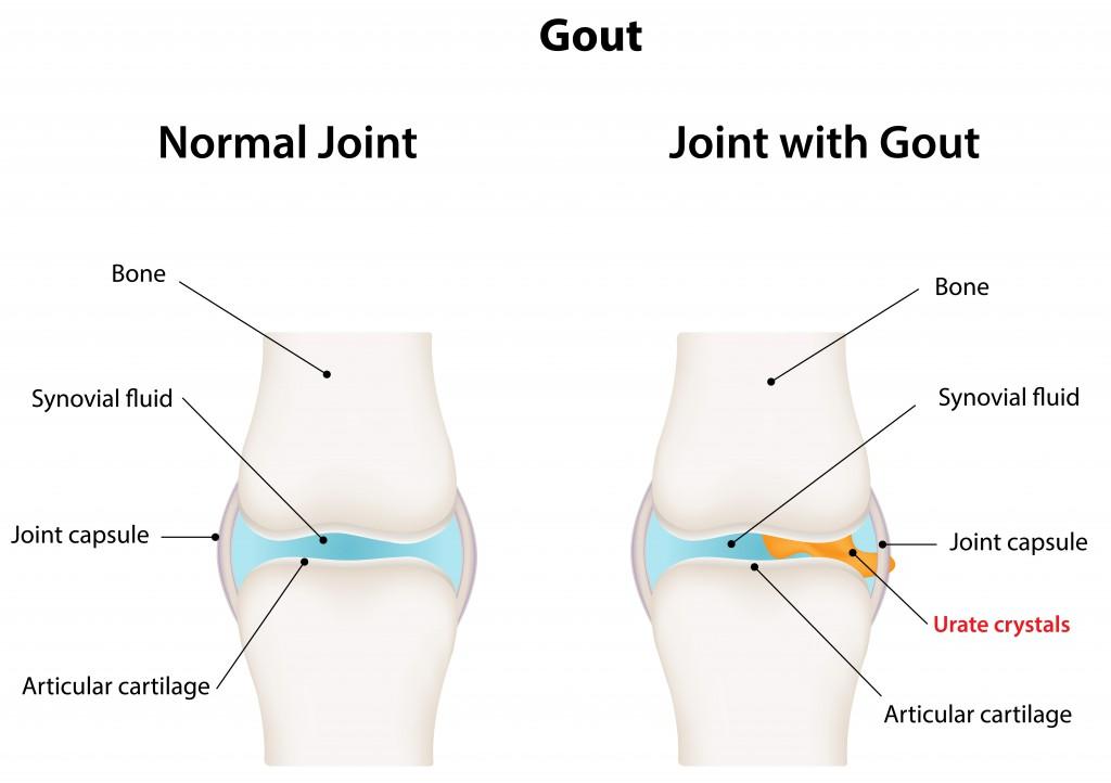 Gout.