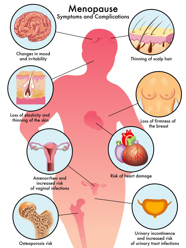 Menopause Symptoms.