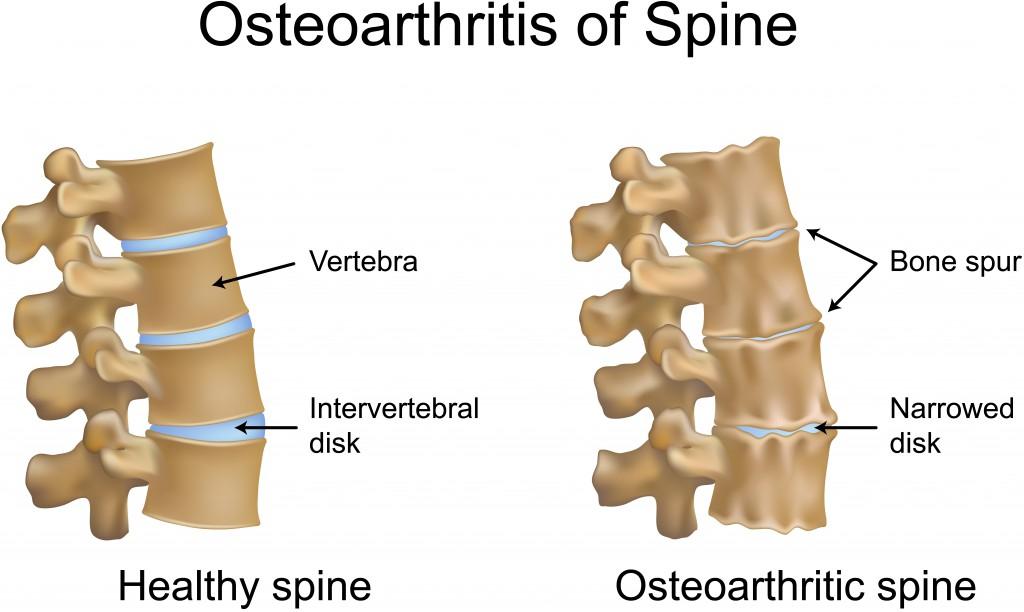 Osteoarthritis of spine.