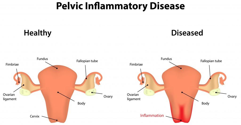 Pelvic Inflammatory Disease.