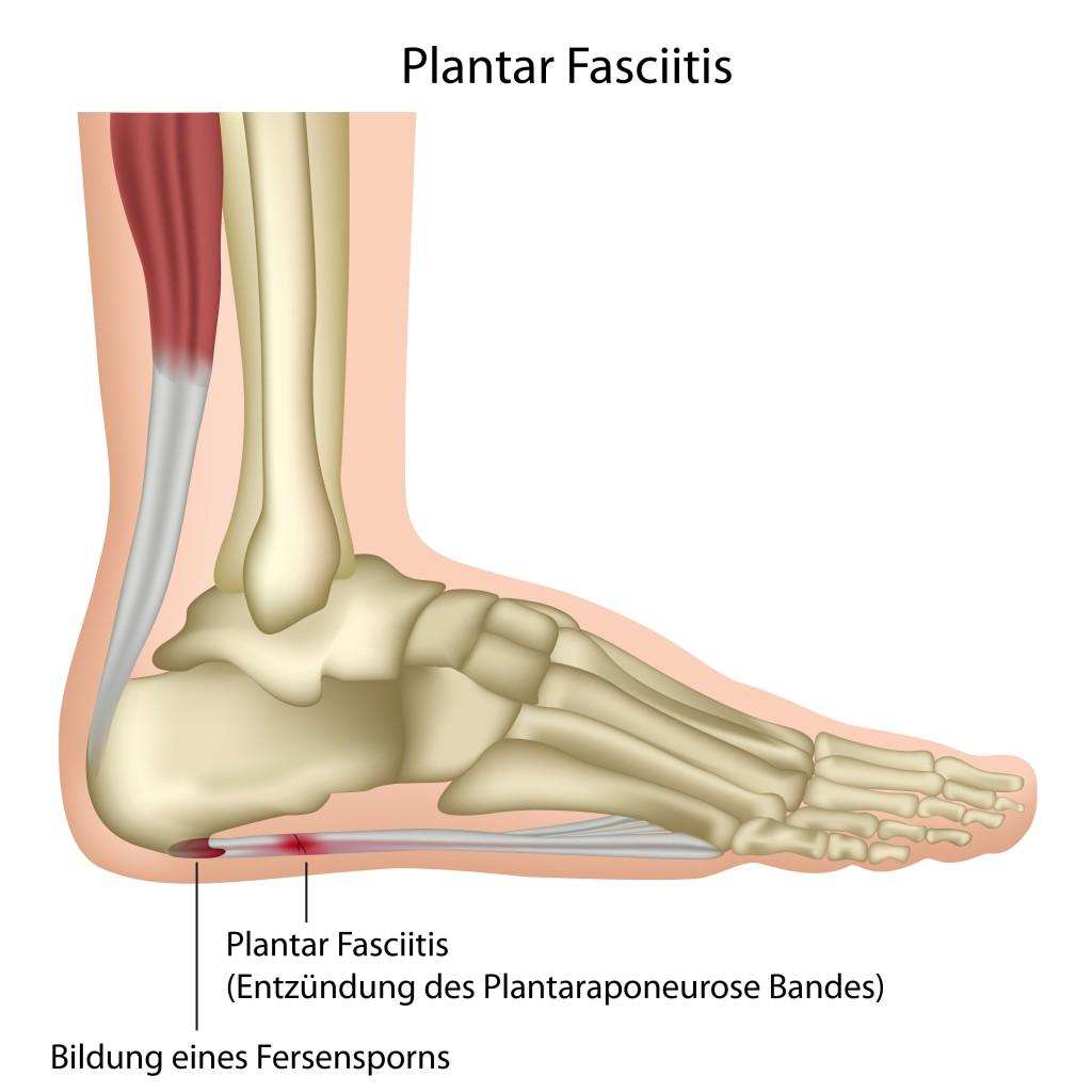 Plantar Fasciitis.